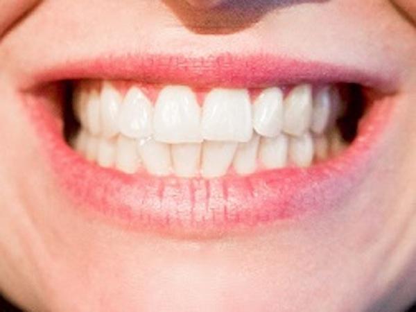 blanchiment dents et détartrage